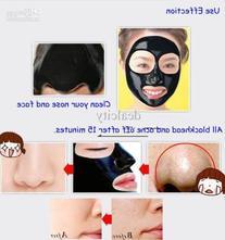 Blackhead Remover Deep Cleansing Purifying Peel Acne BLACK